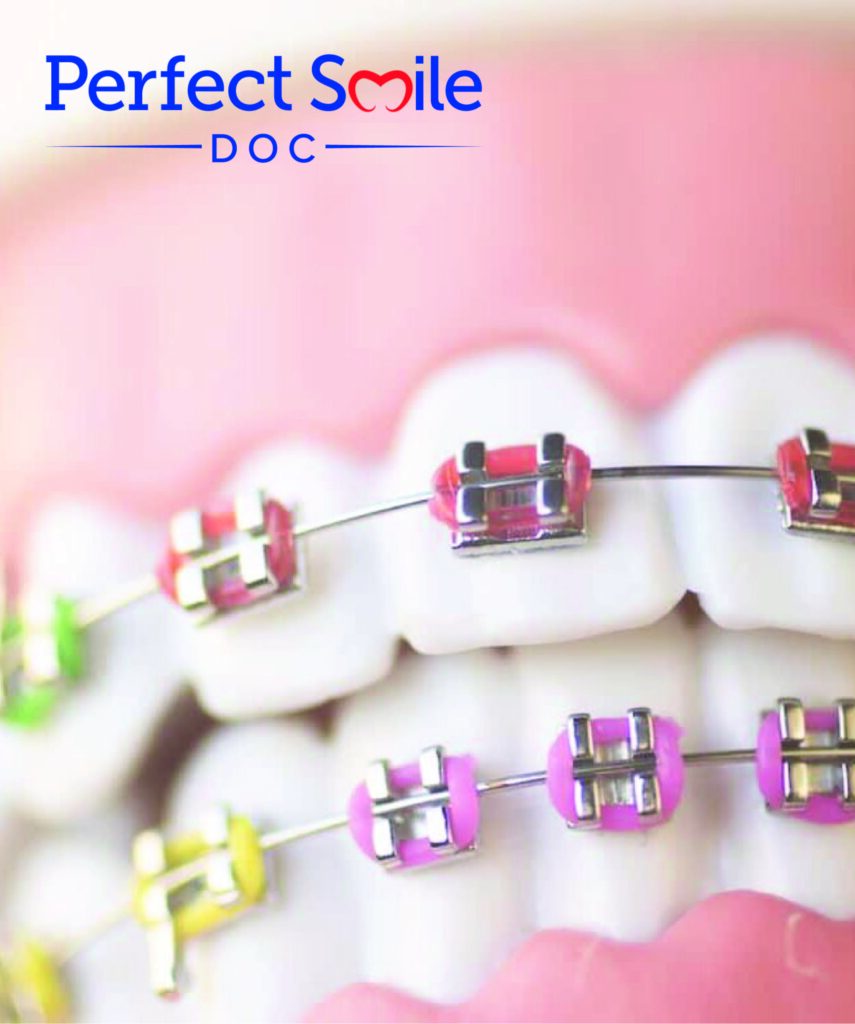 Traditional Braces in The Bronx and Washington Heights